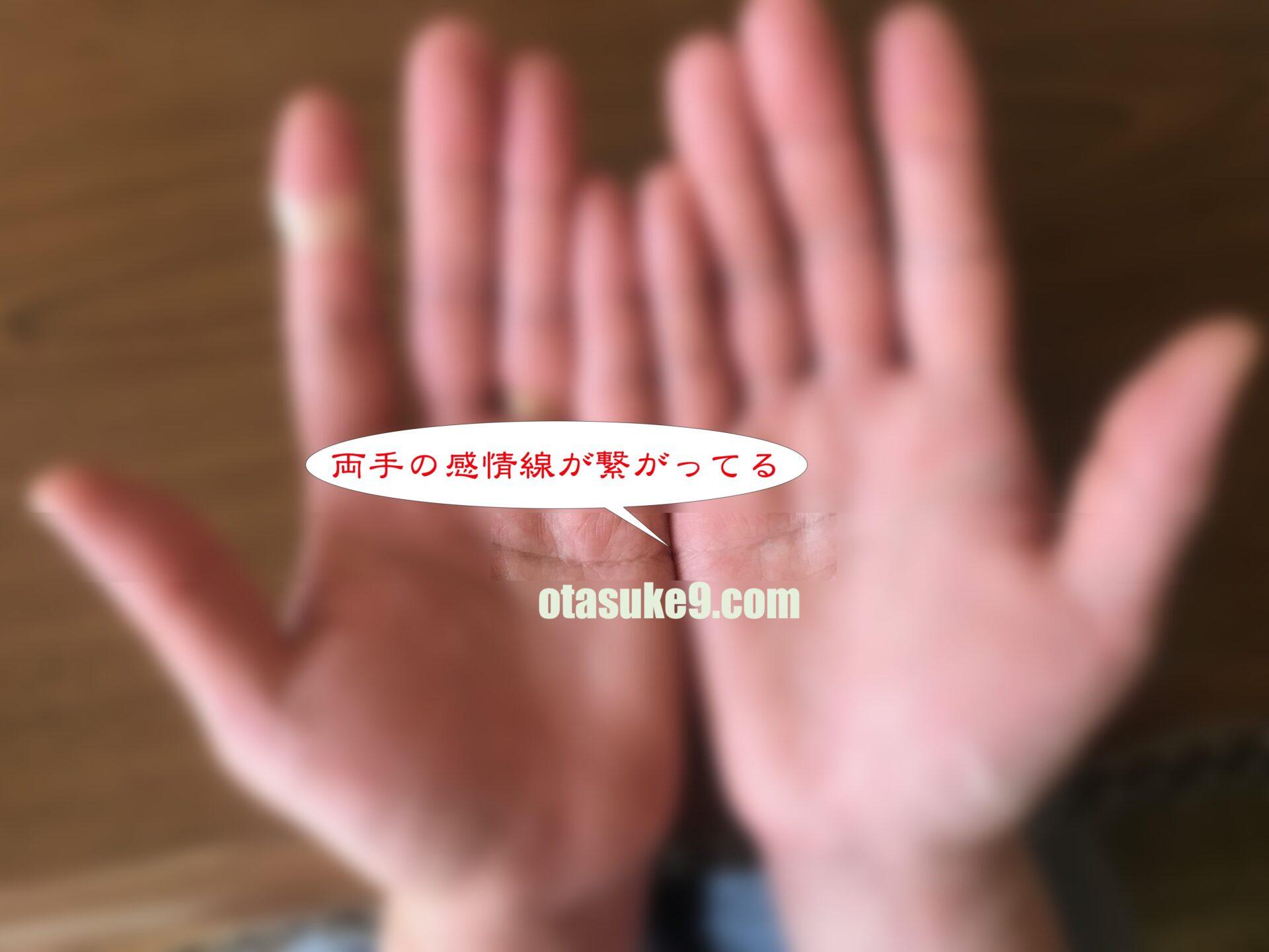両手の感情線が繋がってる
